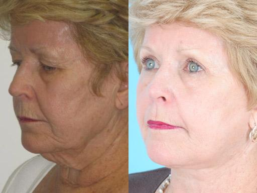 Aging Face before and after pictures in Chicago, IL, Patient 307
