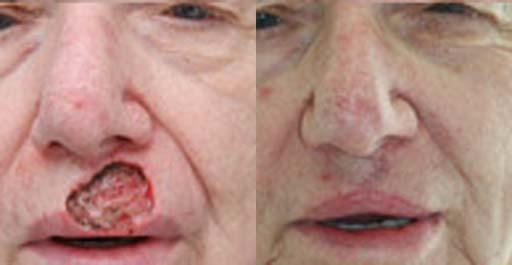 Facial Reconstruction before and after pictures in Chicago, IL, Patient 435