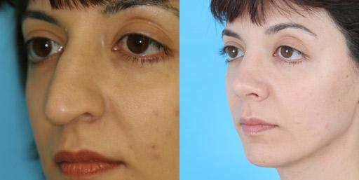 Rhinoplasty before and after pictures in Chicago, IL, Patient 459